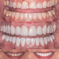 Reabilitacao Oral Total