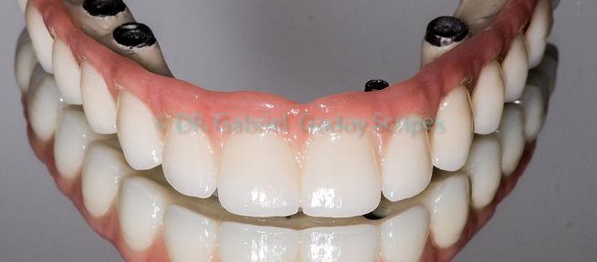 Protese protocolo sobre implante londrina