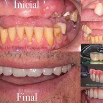Reabilitacao oral paciente Oncologico