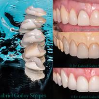 Lente de contato Dental / Facetas
