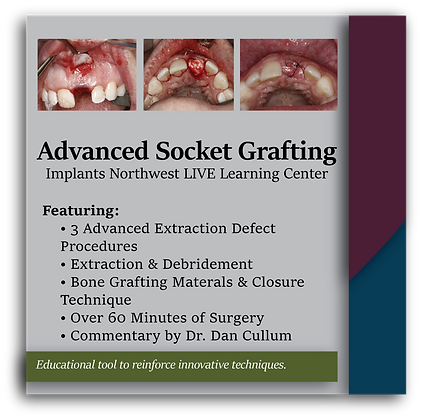 Advanced Socket Grafting