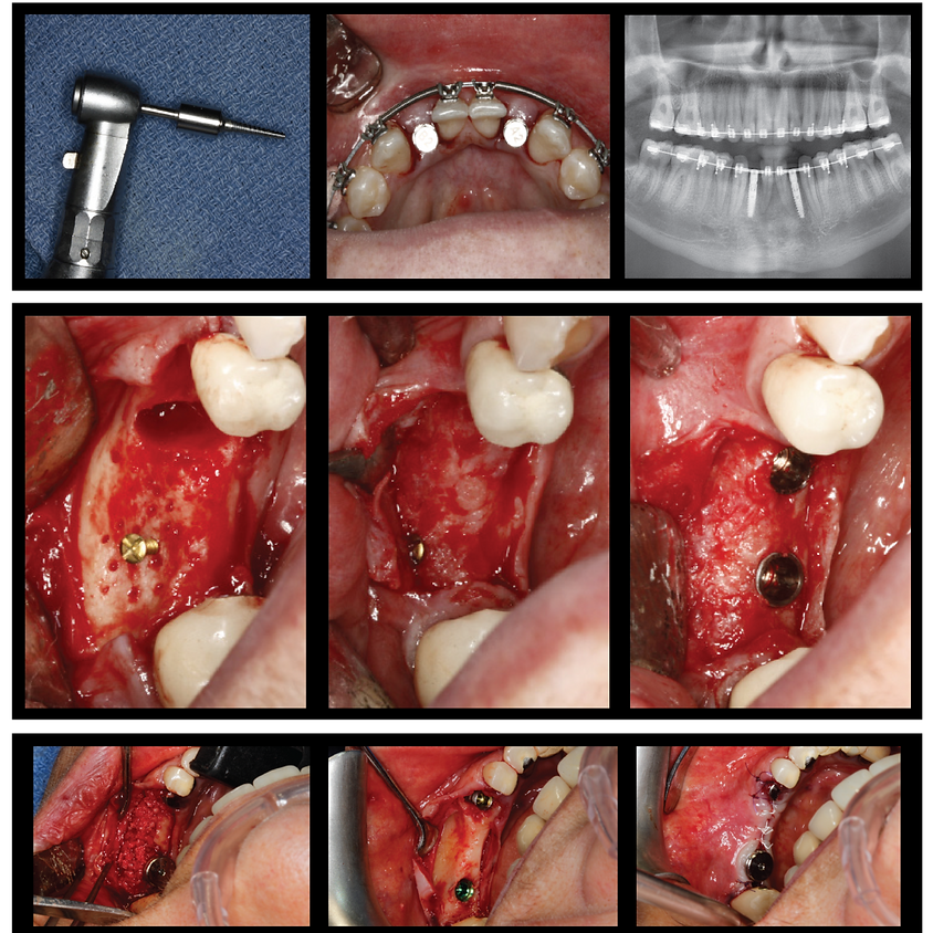 Managing Complications in Horizontal Augmentation