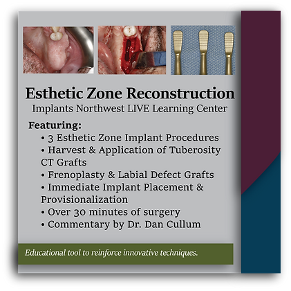 Esthetic Zone Reconstruction