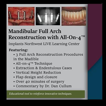 Mandibular Full Arch Reconstruction