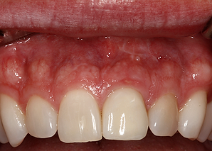 After: Single Dental Implant