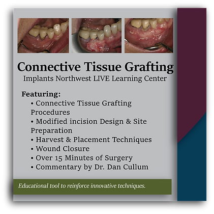 Connective Tissue Grafting