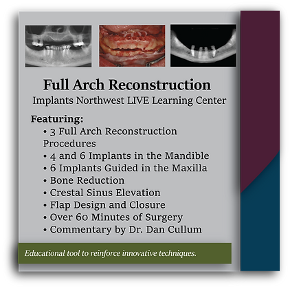 Full Arch Reconstruction