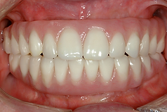 Fig. 21.8o final intraoral buccal copy.p