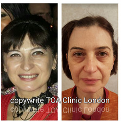 Ultherapy London