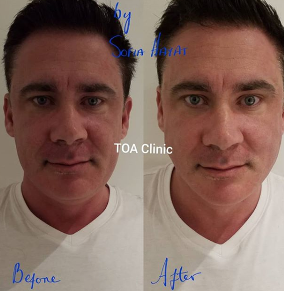 Surgical Face Lifts have gone down 85%! PDO thread lifts have sky rocketed!