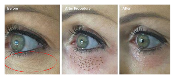 blepharoplasy london
