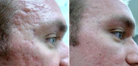 Acne scar London