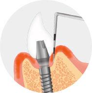 implant_img_15.jpg
