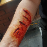 Forearm incised wounds (collaborative work)