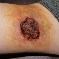 Severely infected wound