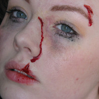 Lacerations and bruising