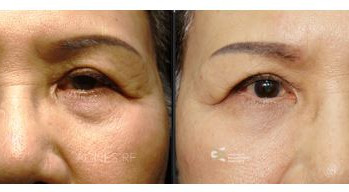 Eye-bags-before-and-after.jpg