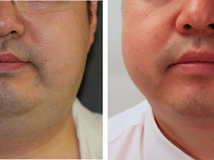 Agnes-Double-Chin-Before-and-After.jpg