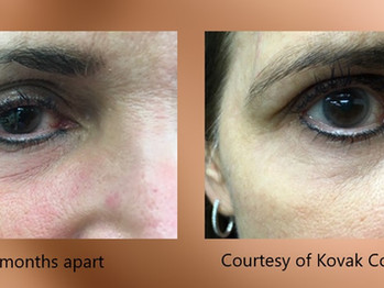 agnes-eye-before-and-after.jpg