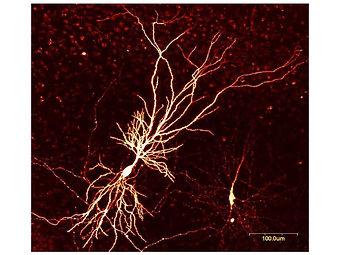 neurone.jpg