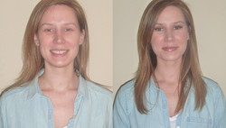 before+and+after+Katie+W..jpg