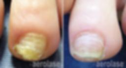 Nails1 - Pair.png