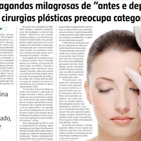 Edição do Brasil - Propagandas milagrosas de cirurgias plásticas preocupa categoria