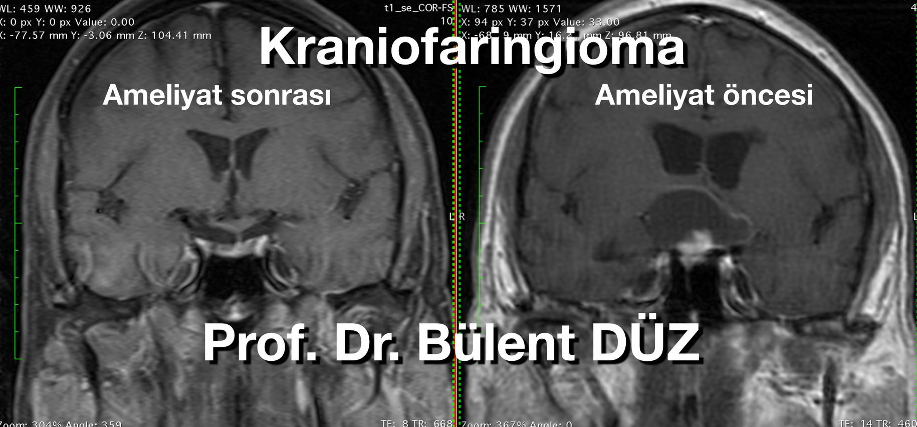 Craniopharyngioma  cor 2 RC.png