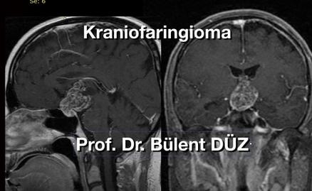 Kraniofaringioma CU solid.png