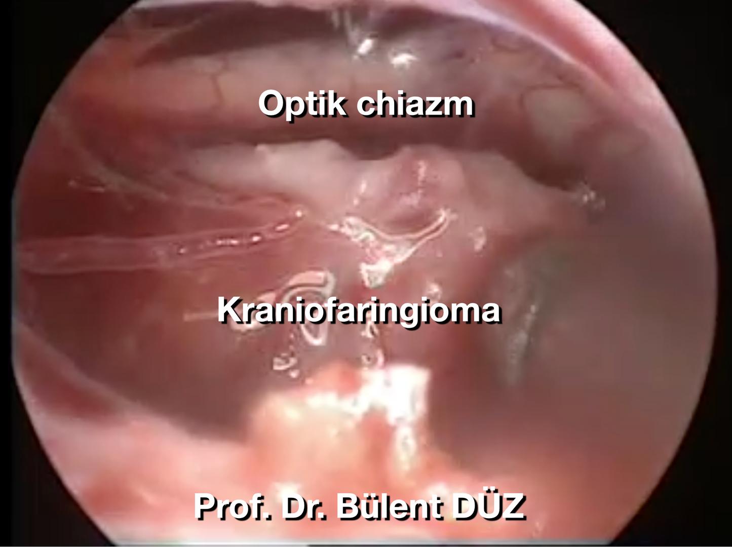 Craniopharyngioma intraop 3 EK.png