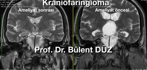 Craniopharyngioma  T2 cor RC.png
