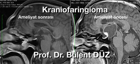 Craniopharyngioma  sag RC.png