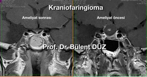 Craniopharyngioma cor EK.png