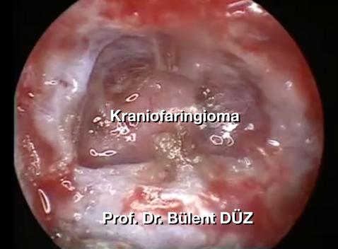 Craniopharyngioma intraop 1 EK.png