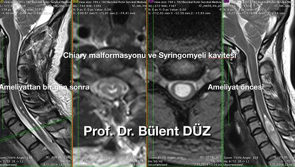 Syringomyeli 2.jpg