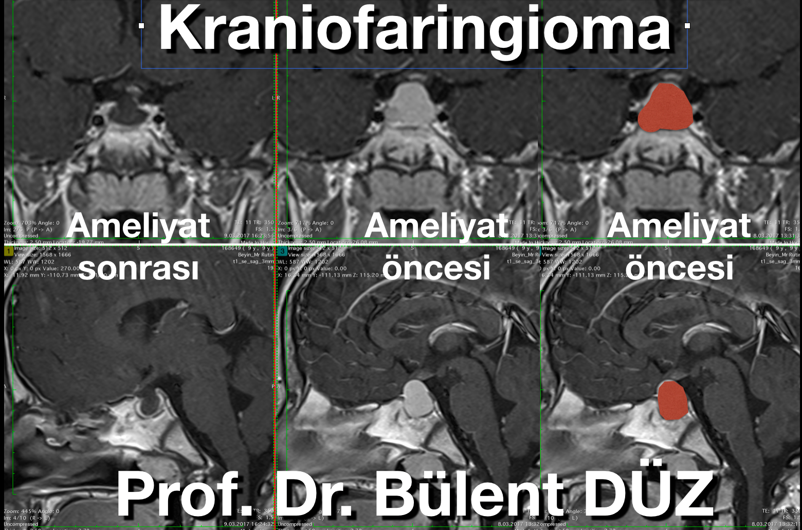 Kraniofaringioma AS.png