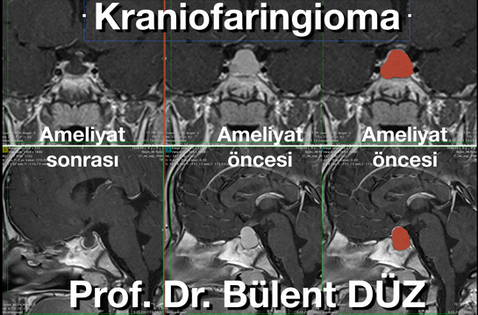 Kraniofaringioma AS.png