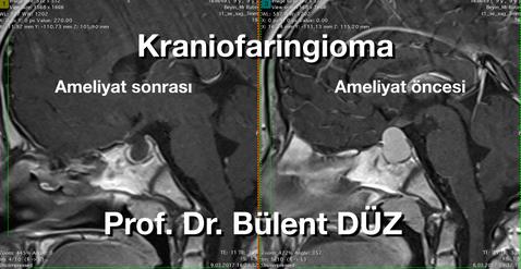 Kraniofaringioma sag AS.png