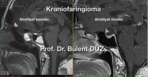 Craniopharyngioma sag EK.png