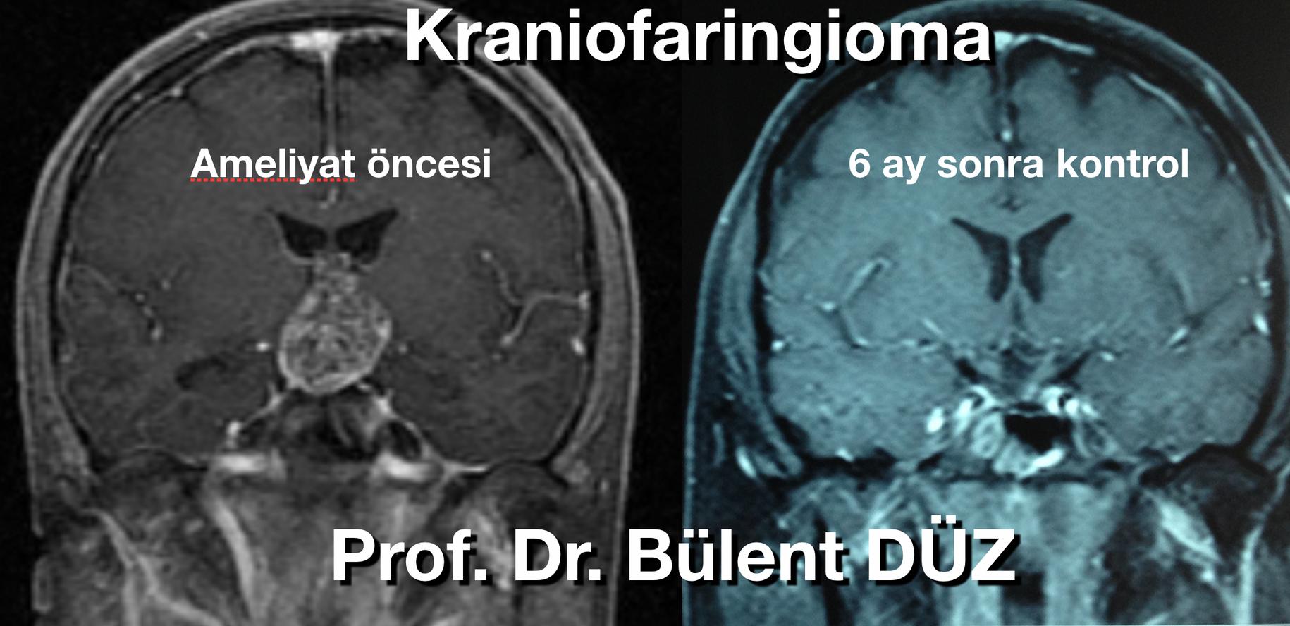 Kraniofaringioma CU cor.png
