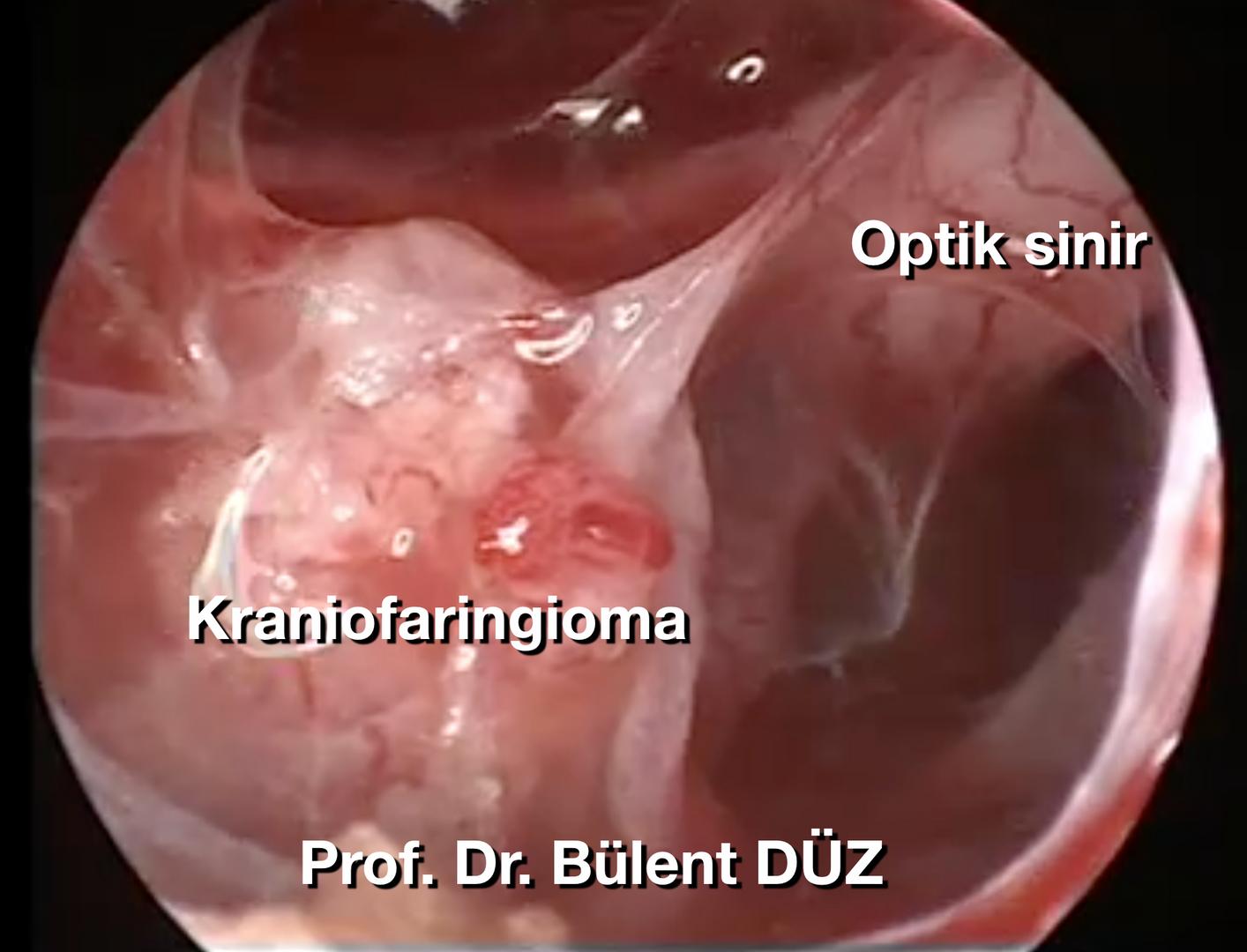 Craniopharyngioma intraop 2 EK.png