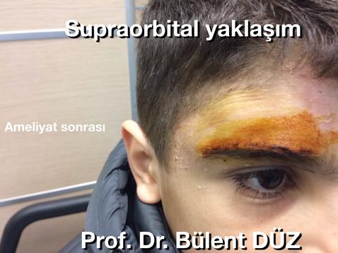 Kraniofaringioma supraorbital AS.png
