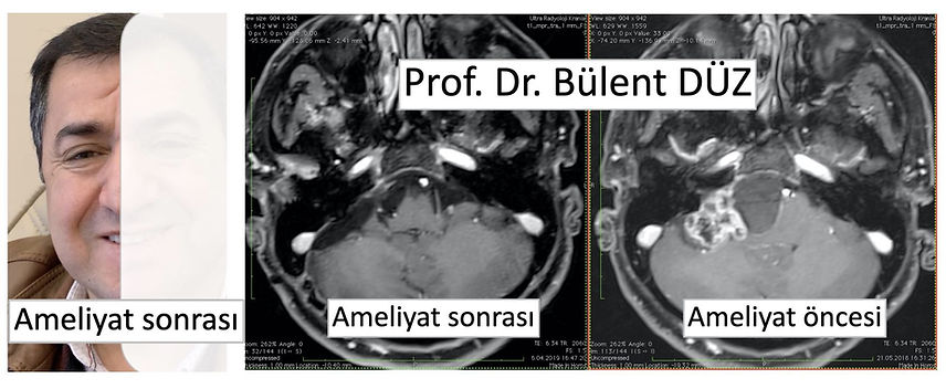CPA angle tumor prof dr bulent duz.jpg