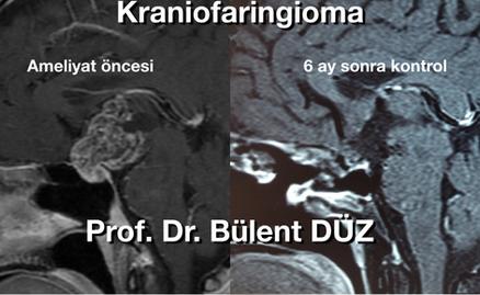 Kraniofaringioma CU sag.png