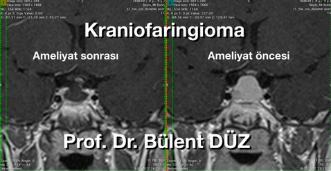 Kraniofaringioma cor AS.png