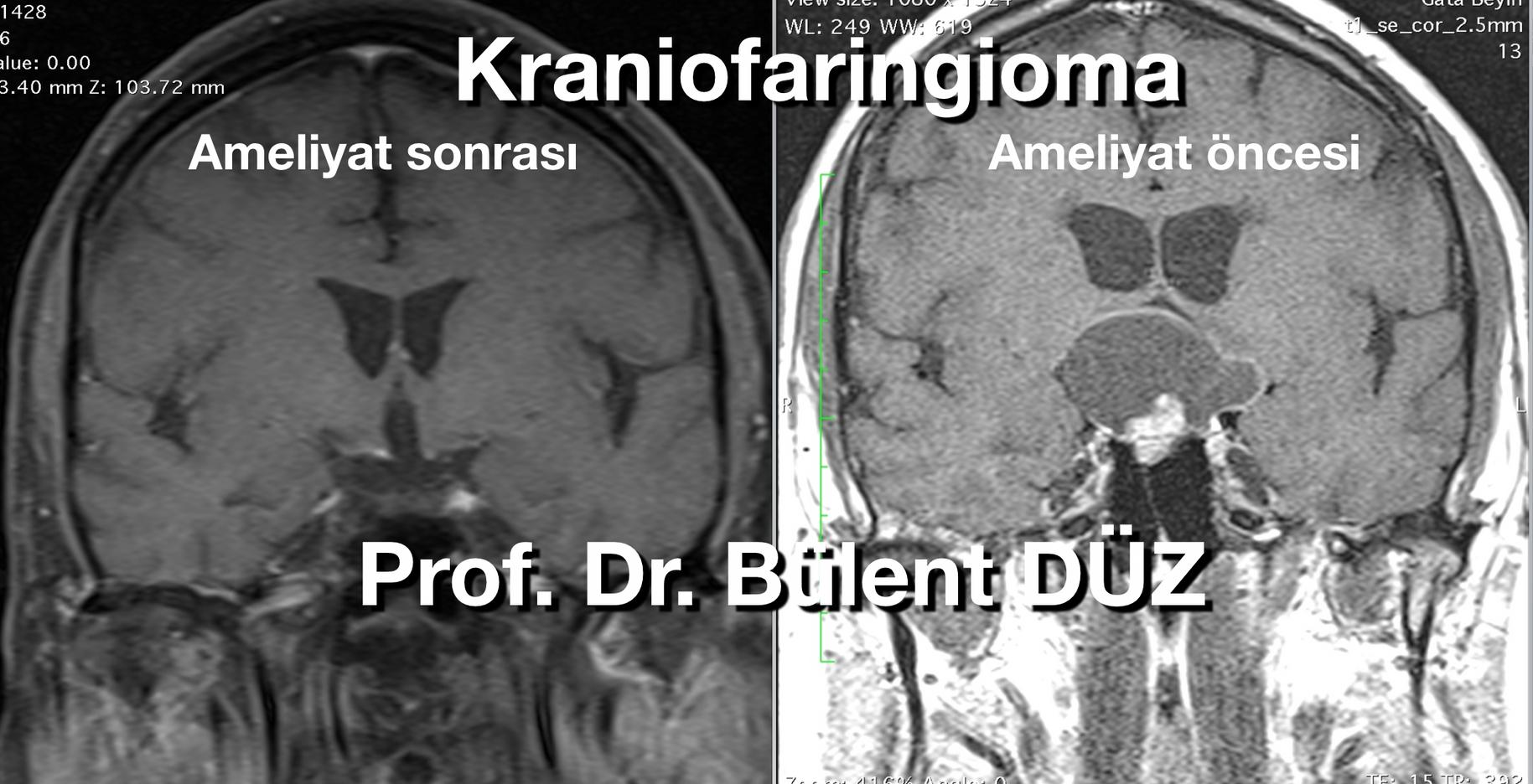 Craniopharyngioma  cor RC .png