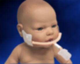 NeoBar Infant ET Tube Holder