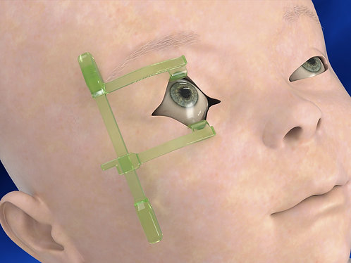 Neonatal Ocular Exam Kit box/10