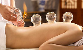 Cupping Therapy (6).jpg