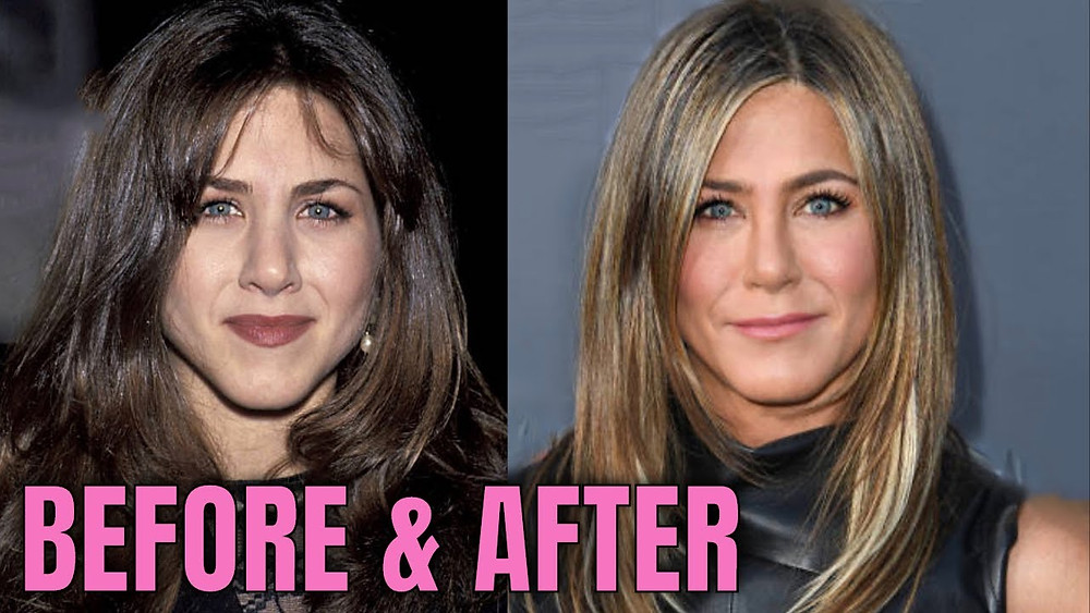 Jennifer Aniston Plastic Surgery before after